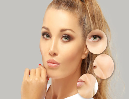 Where can Botox be used in the face?
