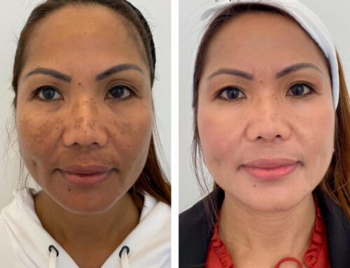 A Laser Focus on Skin Pigmentation and Treatment